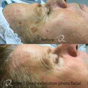 Before and After of Deep Exfoliating Photo Facial