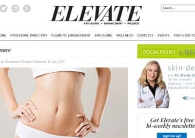 Q on Elevate