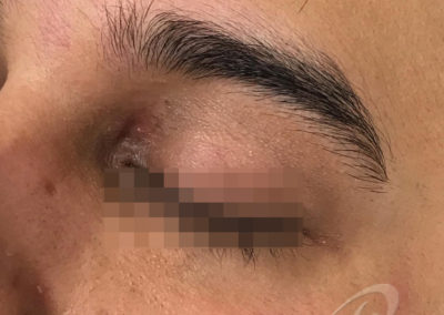 Xanthelasma before after pictures