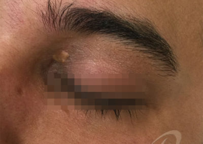 Xanthelasma before after picture