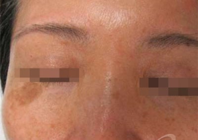 Age Spots Before & After Photos 30