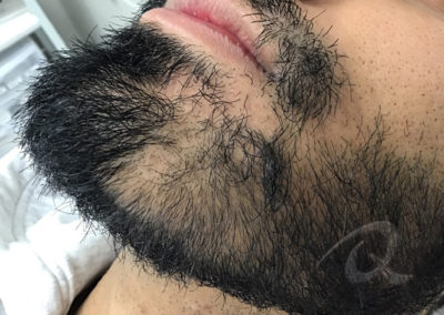 Hair Loss Before After Photo 31