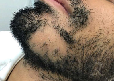 Hair Loss Before After Photos 31