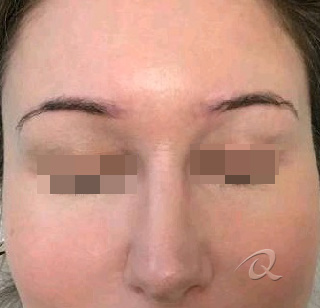 Permanent Makeup Removal Before & After Photos