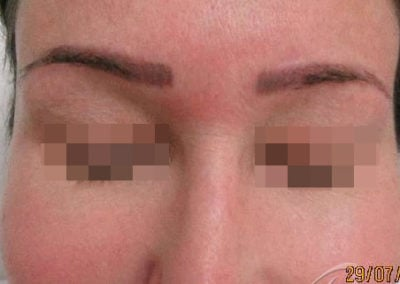 Permanent Makeup Removal Before and After Photos