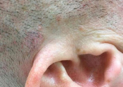 Mole Removal Before & After Photo 30