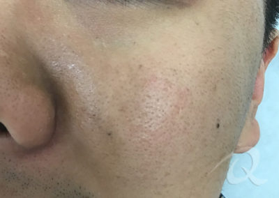 Birthmark Before & After Picture 51
