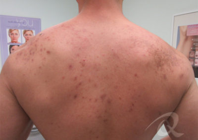 Back acne before after picture 1