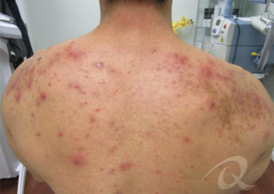 Back Acne Before After Picture