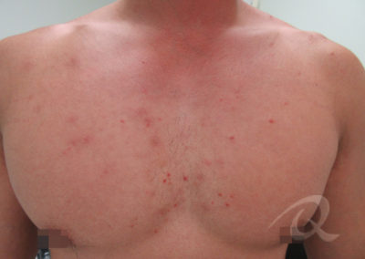 Chest Acne Before & After Picture