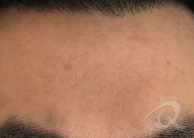 acne scar removal after picture