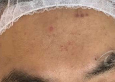 acne scar removal before picture