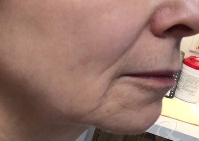 Skin tightening before after photos 30