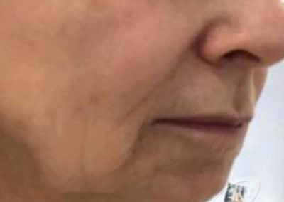 skin tightening before after pictures30