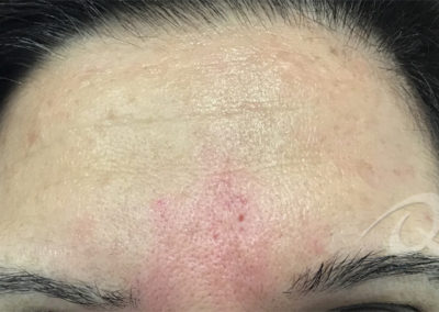 wrinkles removal after picture