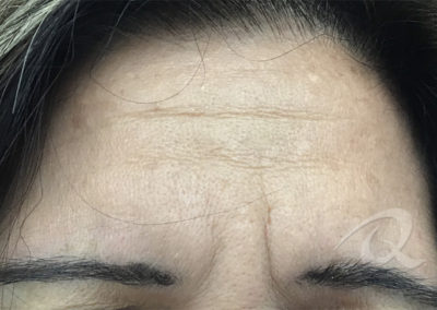 wrinkles removal before pictures