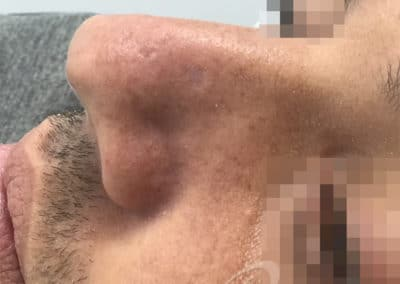 Mole removal after picture 11