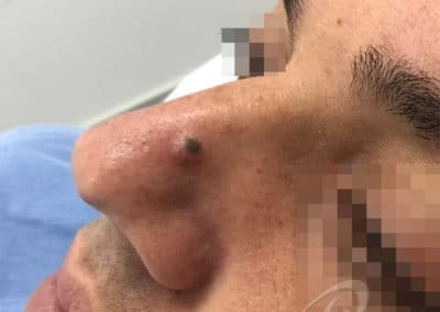 Mole removal before picture 11