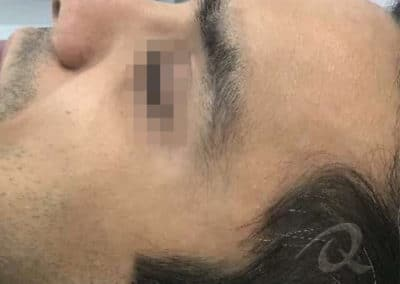 Scar Removal Before Picture 1