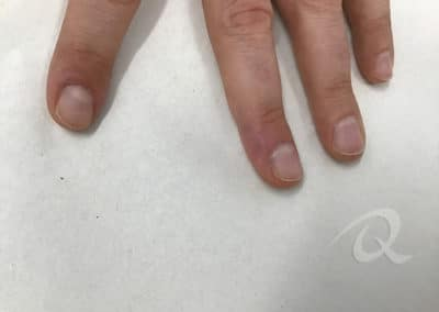 Wart removal after picture