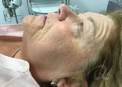 Age spot removal before/after pictures