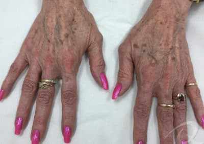 Age spot removal before photo