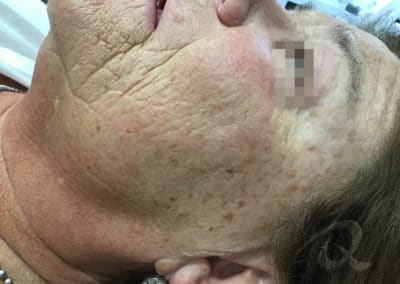 Age spot removal before/after picture