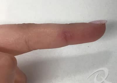 Wart removal treatment after photo