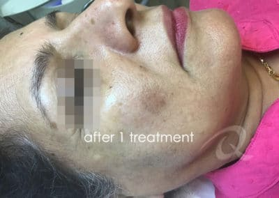 Age spots removal before after picture a-3