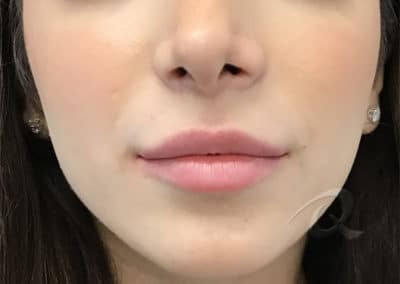 Derma Fillers Before & After Photo