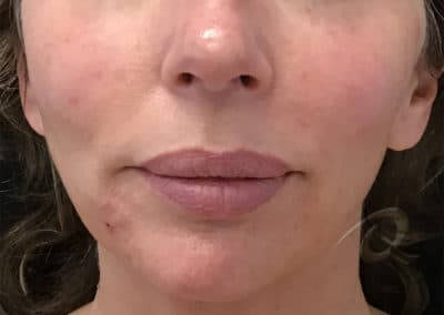 Derma Fillers Before & After Photos a2a2