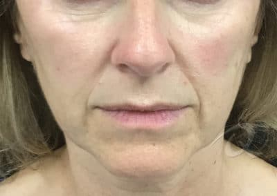 Derma Fillers Before & After Photos a3
