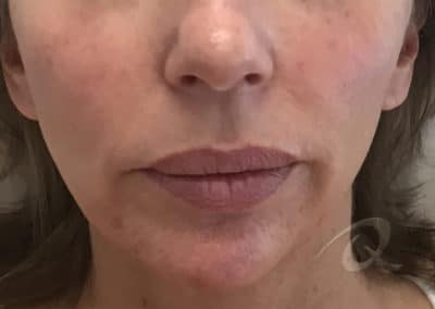 Derma Fillers Before & After Photos b2