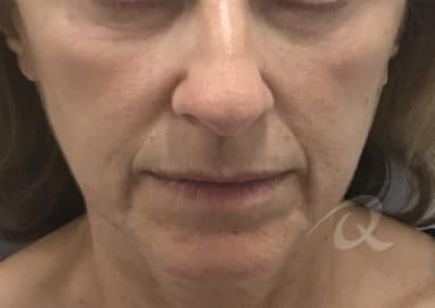 Derma Fillers Before & After Pictures b3