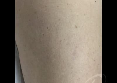 Laser Vein Removal Before & After Photos a1