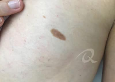 Birthmark Removal Before & After Picture bb11