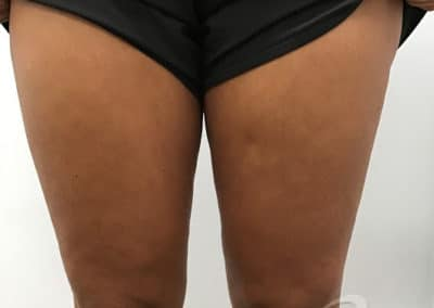 Cellulite Reduction Before & After Photos a1-1