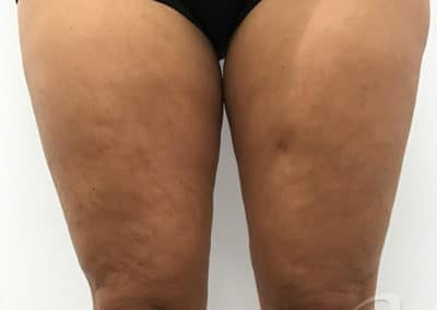 Cellulite Reduction Before & After Pictures b1-1
