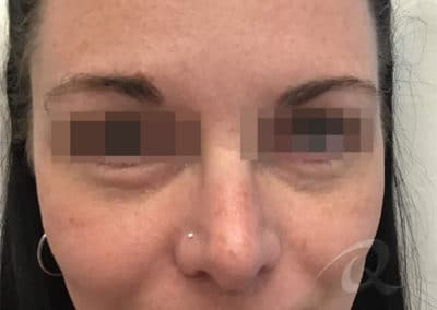 Dark Circles Before & After Pictures b1