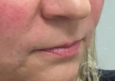 Fillers Before & After Photo a1