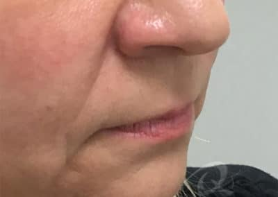 Fillers Before & After Pictures