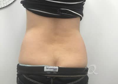 Fat Removal Before & After Photos a3-1