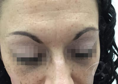 Frown Line Before & After Pictures