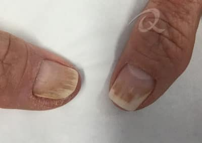 Fungal Nail Treatment Before & After Photo b1