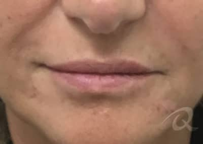 Lip Enhancement Before & After Photos after