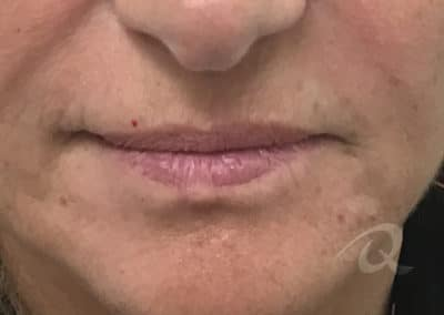 Lip Enhancement Before & After Photos before