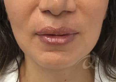 Lip Enhancement Before & After Photo a1