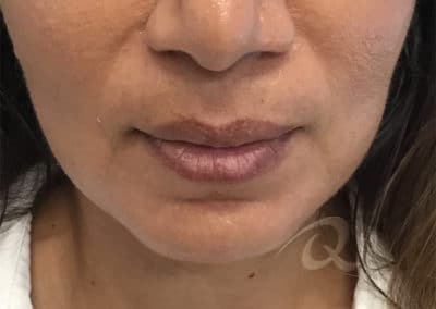 Lip Enhancement Before & After Photo b1