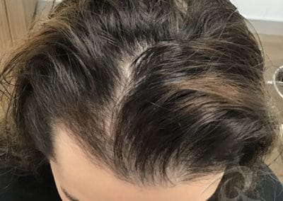 Mesotherapy Hair Loss Treatment Before & After Photos a1