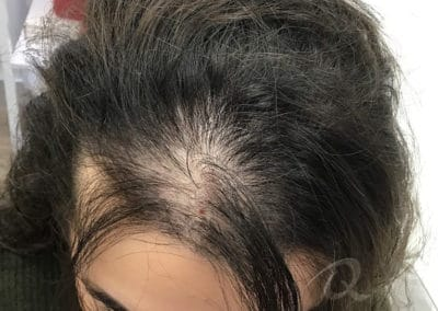 Mesotherapy Hair Loss Treatment Before & After Picture b1